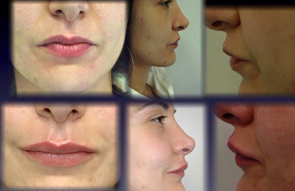 Dr.-Raffaele-Castaldo-Software-Odontoiatra-Chirurgia-maxillo-facciale4 Centro Medico Chirurgico FOUR