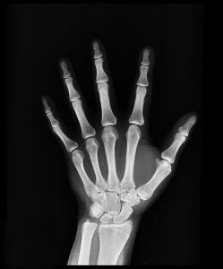 x-ray-1704855_960_720-249x300 x-ray-1704855_960_720