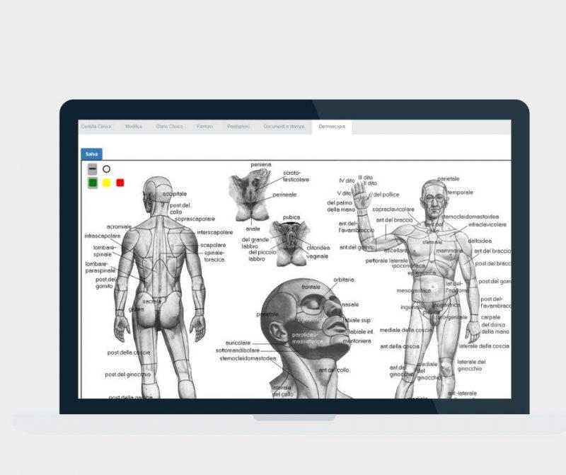 Dermoscopia_software-dermatologia_ArzaMed_-800x671 Dermatologia