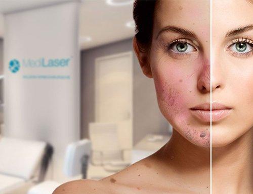 MediLaser-ArzaMed-dermatologia Medilaser